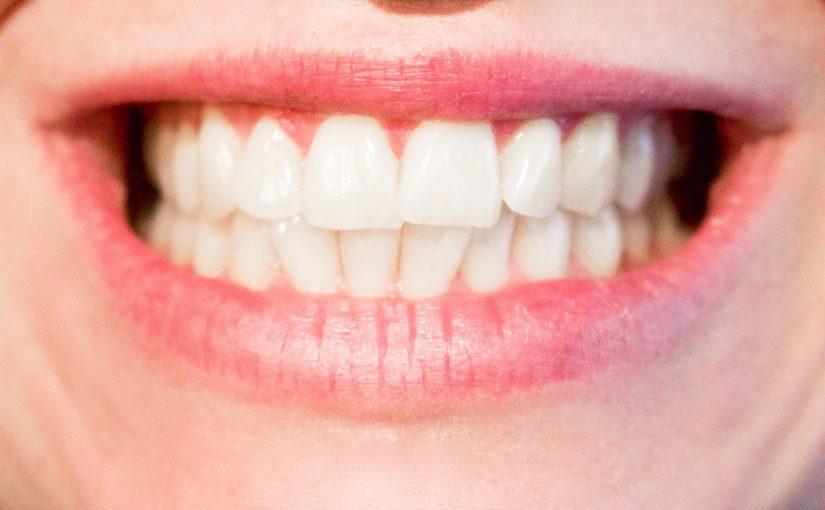 Nowoczesna technologia używana w salonach stomatologii estetycznej może sprawić, że odbierzemy śliczny uśmieszek.