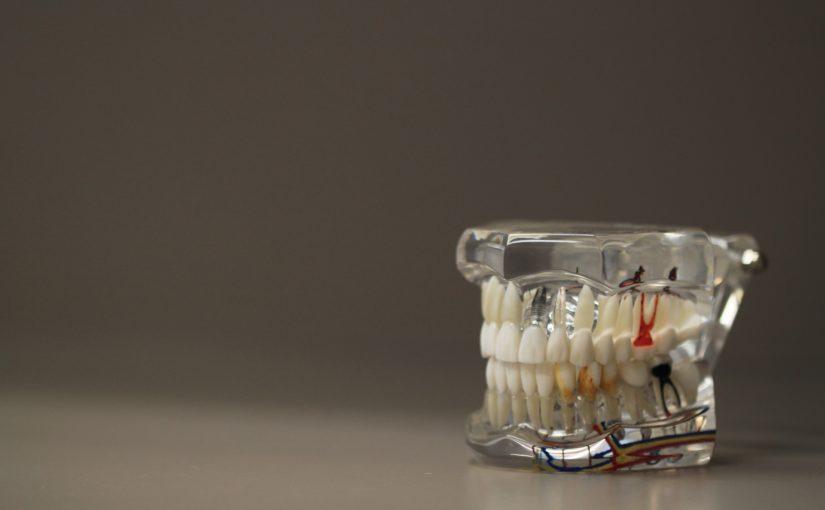 Zła metoda żywienia się to większe braki w jamie ustnej oraz także ich zgubę